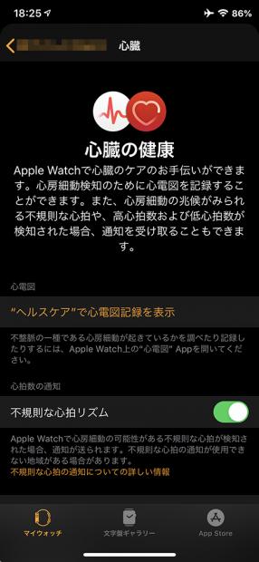 「Watch.app」の「心臓」内の「不規則な心拍リズム」をオンにする