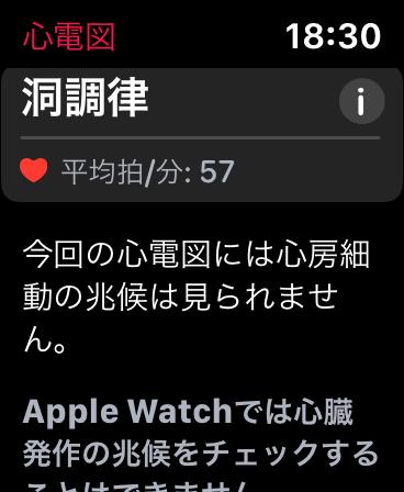 「Apple Watch Series 5」側の測定結果