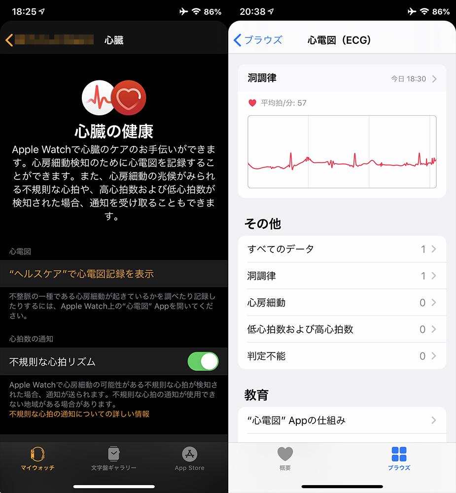 日本販売の「Apple Watch」でも「ECG機能」が有効になった!